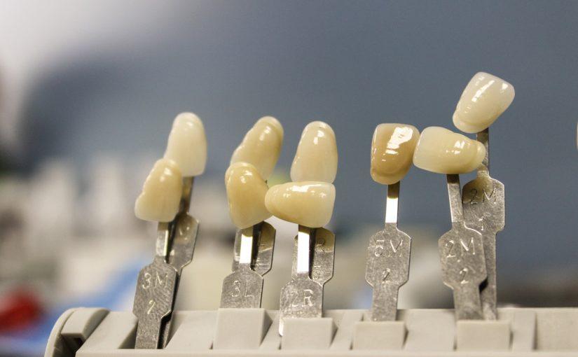 Prześliczne nienaganne zęby również doskonały uroczy uśmieszek to powód do dumy.